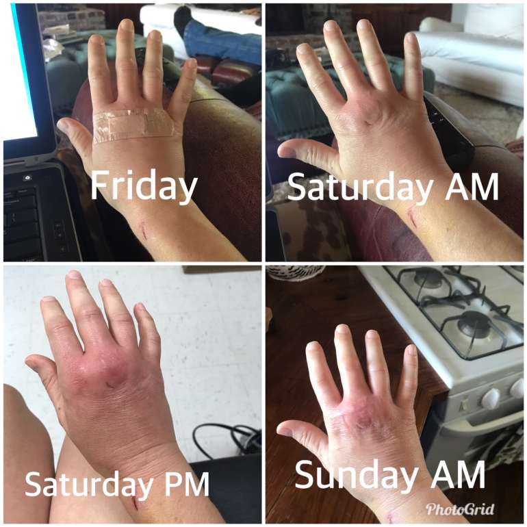 Hand Infection